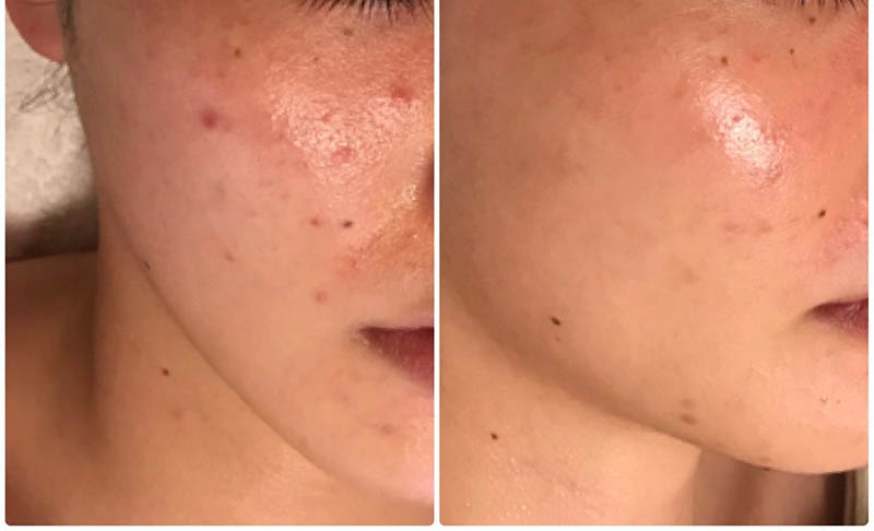 acne treatment los angeles