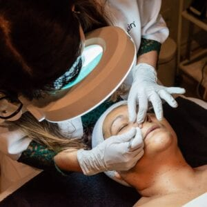 acne treatment in los angeles